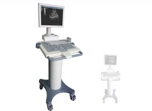E110 Ultrasonic Diagnostic Imaging System