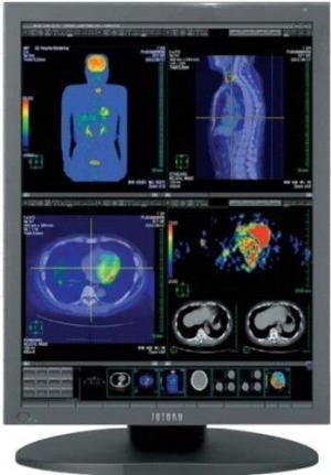 "Totoku CCL354i2 21.3"" 3MP Color LCD Medical Display"
