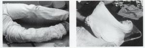 heat shield blanket first aid