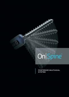 On | Spine ® (Posteriro Lomber)