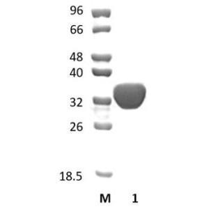 Acetyl xylan esterase  6B