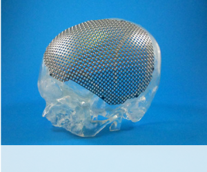 Titanium Patient Specific Implants