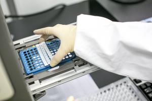 Molecular Diagnostics - Products - Fapon Biotech Inc.