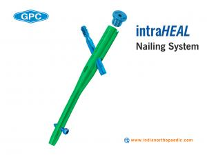 The Intramedullary Nailing System