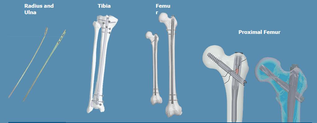 LETO - Intramedullary nail system   Mediox Kft