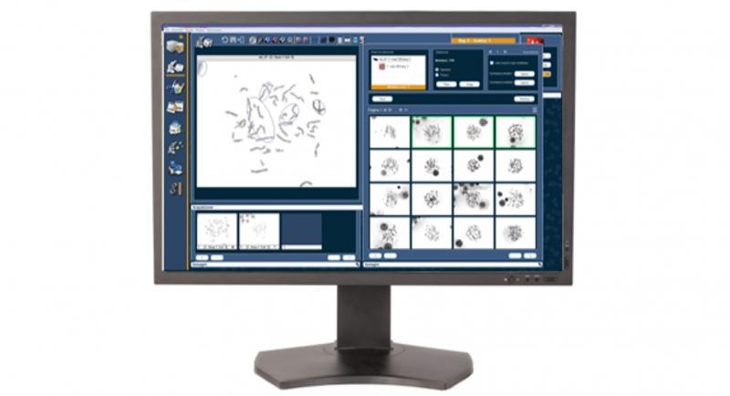 Genikon - automated karyotyping platform