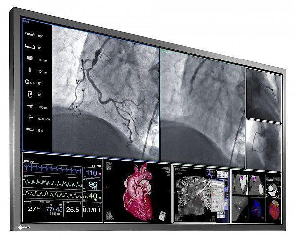 EIZO RadiForce LS580W 57.5 Inch LCD Monitor