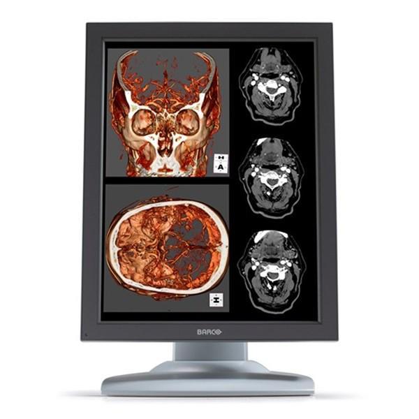 Barco MDNC2121 (MDNC-2121) Nio 2MP Color HB Diagnostic Display