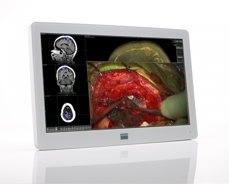 Barco MDSC-2224 LED 24-inch Full HD Near-Patient Surgical Display