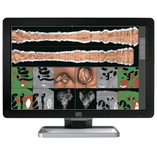 Barco MDCC-6130 (MDCC6130) K9301630A 6MP Diagnostic Medical Color Monitor