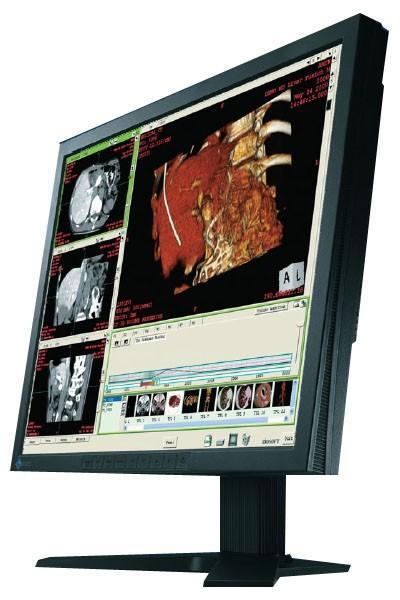 Eizo RadiForce R12 LCD Medical Display