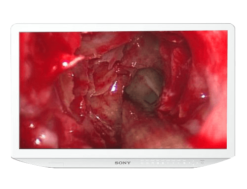 Sony LMD-2735MD 27 Inch HD LCD Medical Grade Surgical Display Monitor Screen