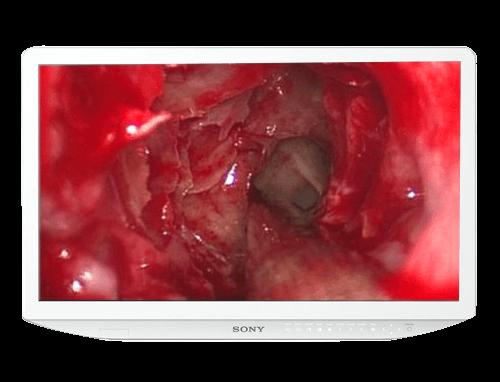 Sony LMD-2735MD 27 Inch Full HD Medical LCD Monitor