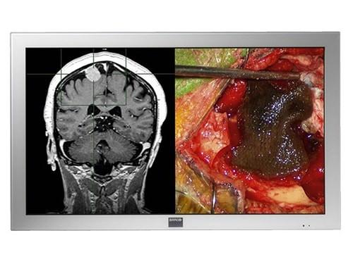 Barco MDSC-2242 LED 42-inch Full HD Large-Screen Surgical Display