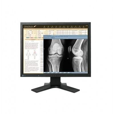 EIZO RadiForce MX210 21.3 Inch 2MP Color TFT LCD Monitor Panel
