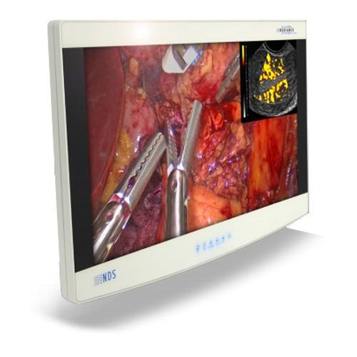 NDSsi Radiance Ultra 90R0100 27 inch Surgical Display