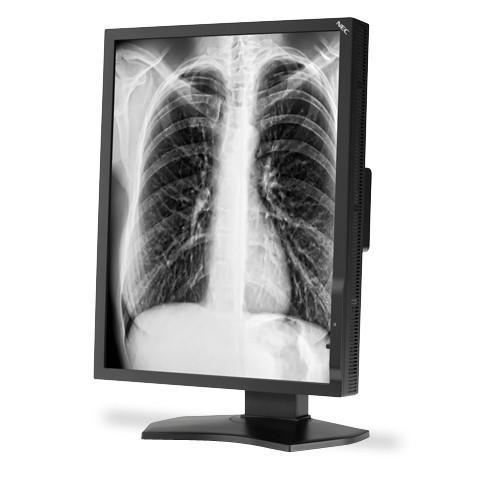 "NEC MD211G3 21"" Grayscale 3MP Medical Diagnostic Monitor"