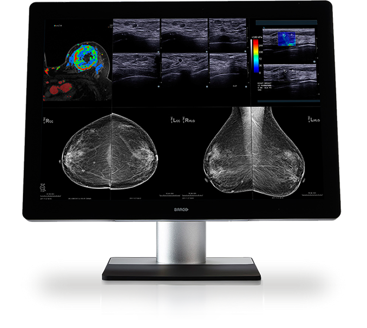 Barco 12MP Coronis Uniti MDMC-12133 PACS Diagnostic Display System