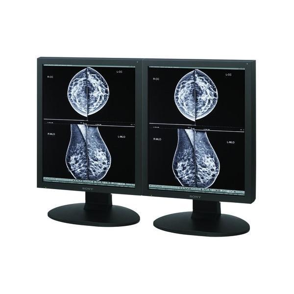 Sony LMD-DM50 5MP Grayscale Radiology Display