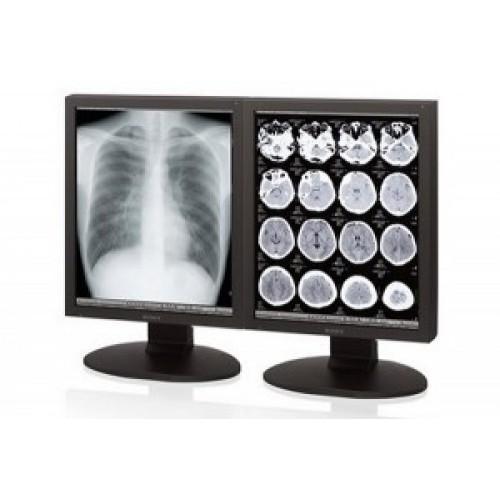 Sony LMD-DM30 3MP Grayscale Radiology Display