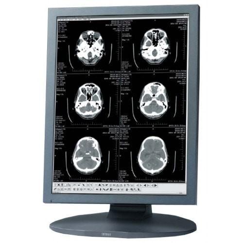 "Totoku ME201LR (ME201L /r) 2MP 20.1"" Grayscale LCD Display"