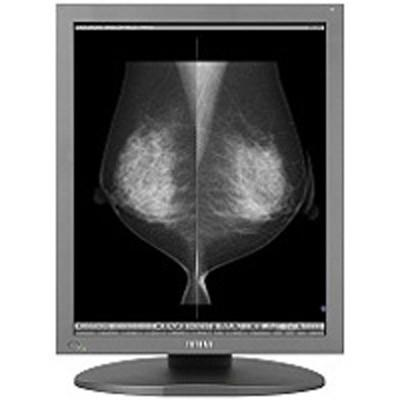 TOTOKU ME551i2 5MP 21.3 inch Grayscale Mammography Display