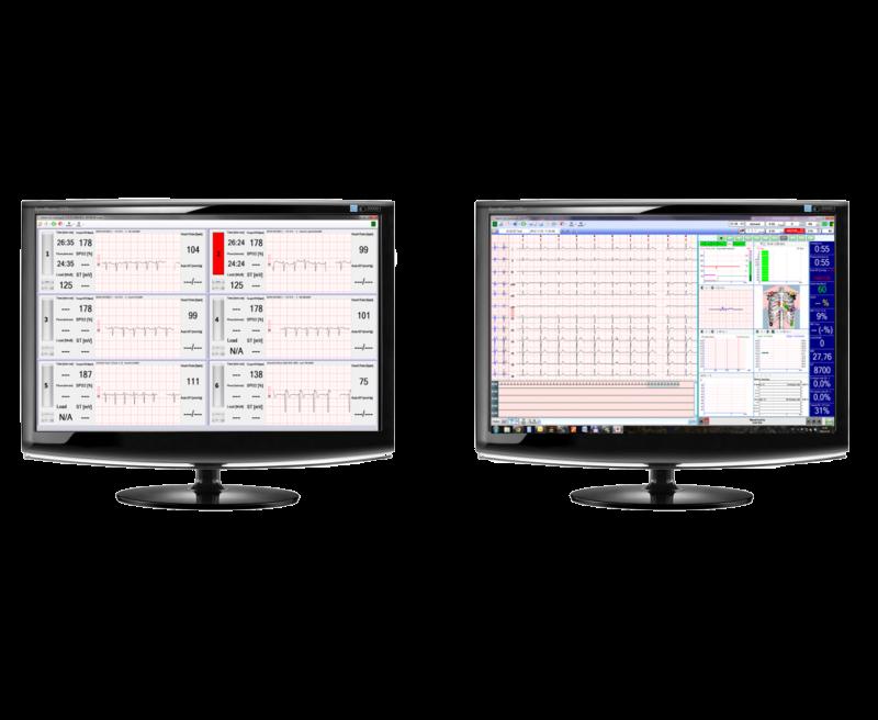 REMOTE ECG SYSTEM - MONITORING CENTRE BUILT UP MULTI STRESS- OR REST WORKSTATION
