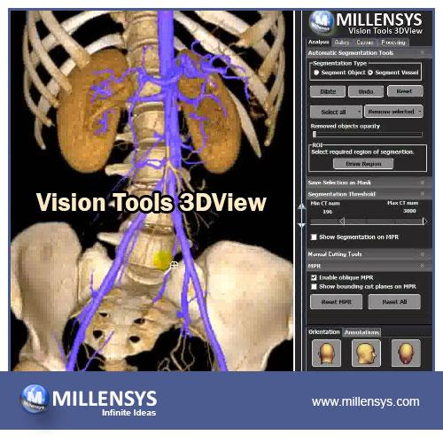 a powerful and scalable 2D/3D reconstruction software for PET/CT modalities