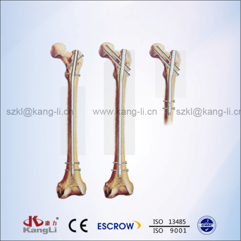 KTO Femoral Intramedullary Nails System