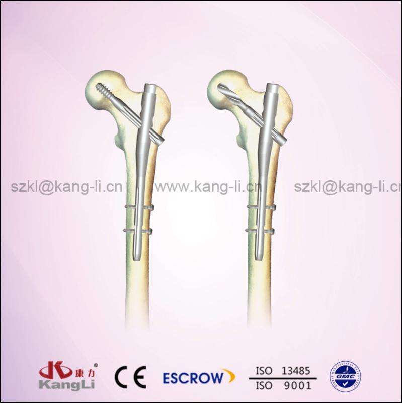 PF Gamma Intramedullary Nails System