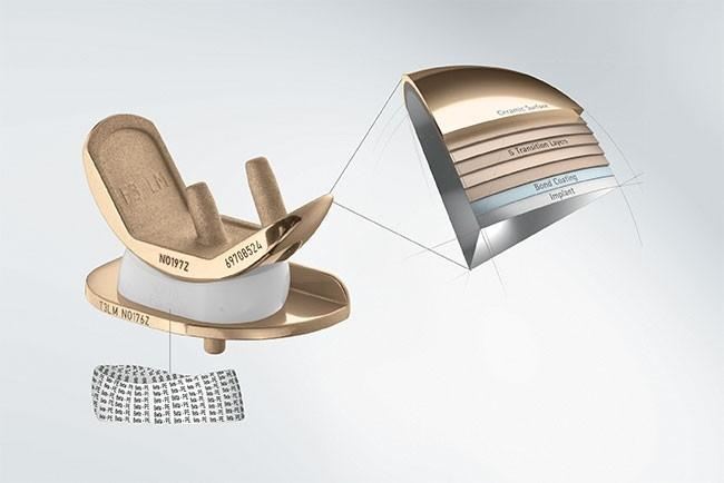 univation® X Unicondylar Knee Arthroplasty System