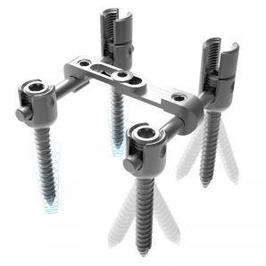 HKTO MULTI LOCKING SYSTEM - Implant