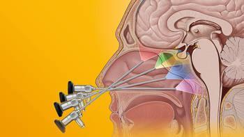 Visualization and Instruments for Endonasal Skull Base