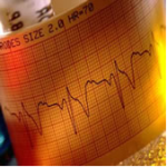 Cardiovascular | R&D Medical Electrodes