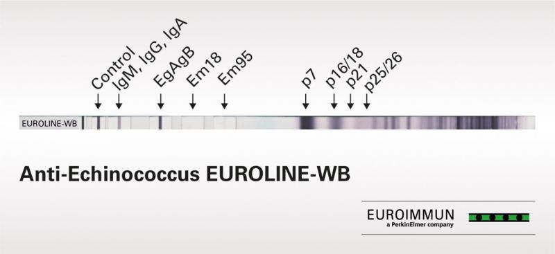 Anti-Echinococcus EUROLINE-WB
