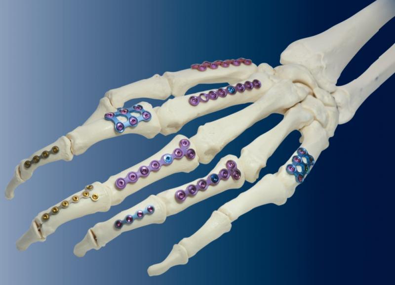 QUANTUM HAND PLATING SYSTEM- OSTEONIC