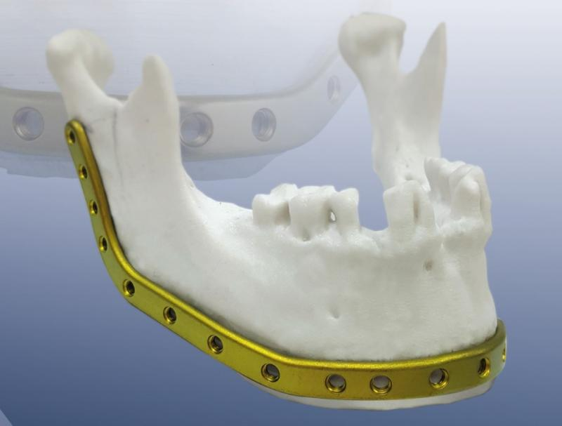 REAL FIX RECONSTRUCTION PLATE - OSTEONIC