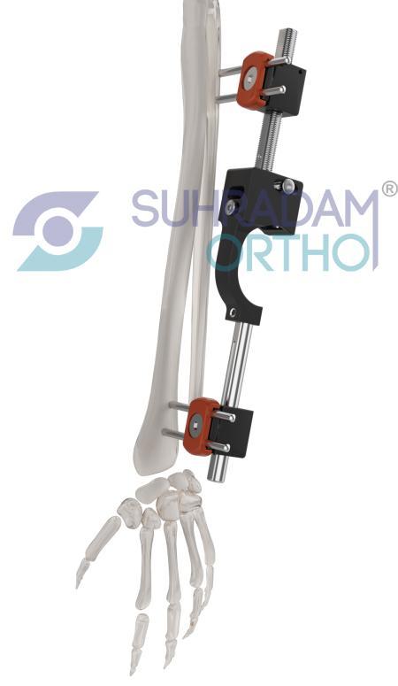 Distal Radius External Fixator System