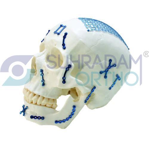 Cranio - Maxillofacial Implant