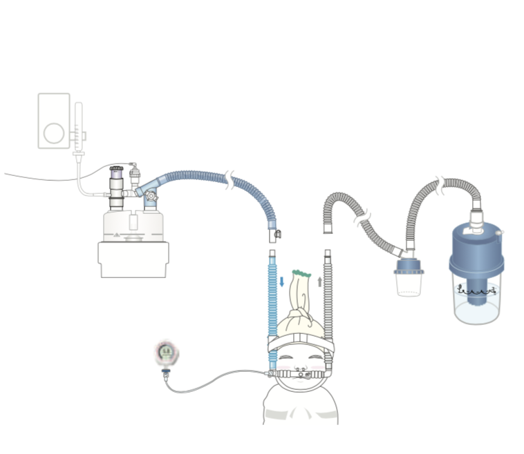 GaleMed Bubble CPAP