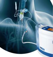 simex subglottic aspiration system