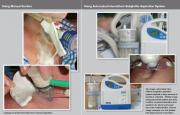 using manual suction vs. simex subglottic aspiration system