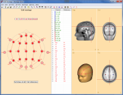 Graphical display of a user-defined montage
