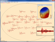 Top data view of two averaged conditions in a P3 paradigm