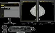DIARM™ DM Mammography Workstation