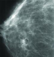 Mamawire Fix Breast Clip marker