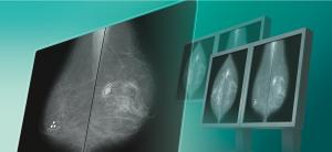 DIGITAL MAMMOGRAPHY CAD