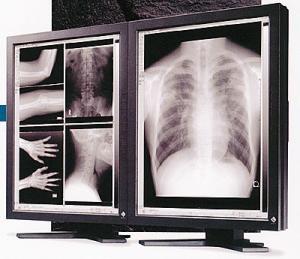 Eizo Radiforce FC2091 (FC-2091) LCD Medical Display