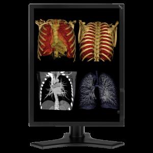 NEC MD213MC 3MP 21 Inch Medical Diagnostic Display