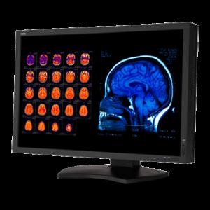 NEC MD301C4 MultiSync 30 Inch Color 4MP Widescreen Medical Diagnostic Monitor